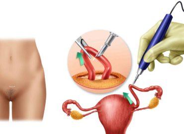 métodos-anticonceptivos-permanentes-alt