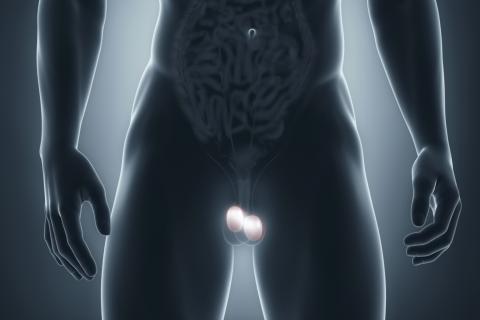 cancer-testicular