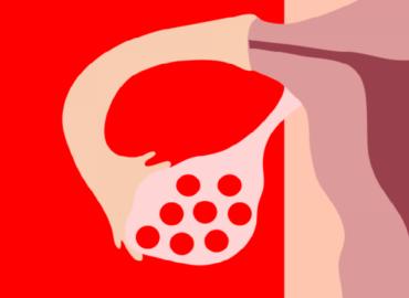 Ovario poliquistico