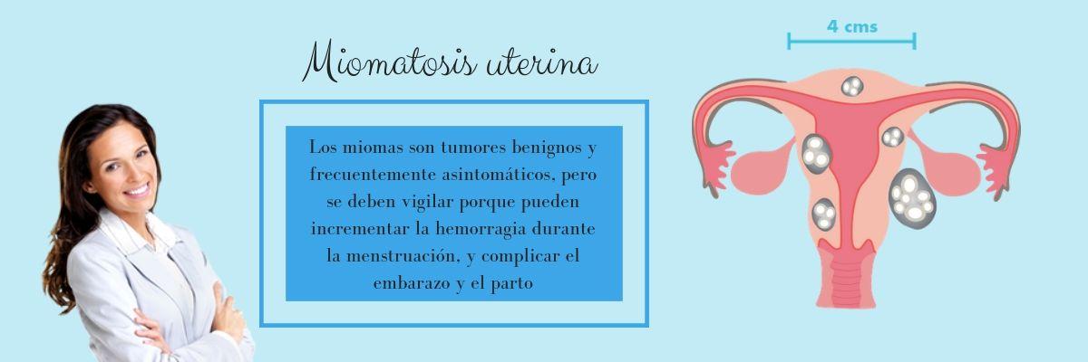 miomatosis-uterina-